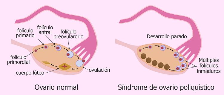 Comparacion del ovario normal y el ovario poliquitico
